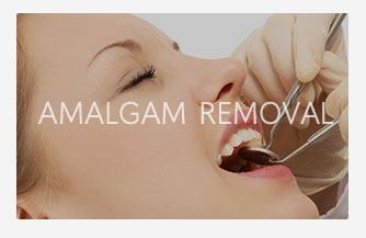 Amalgam removal